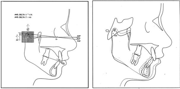 Angle Orthod 1994 Vol.64-2