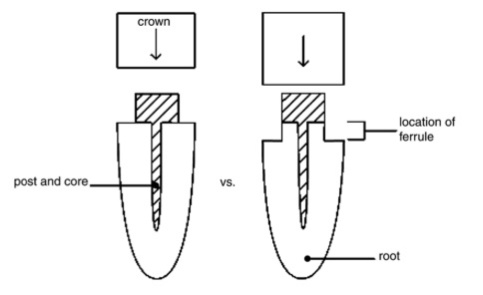 Int Endodontic J 2002 Vol.35-2
