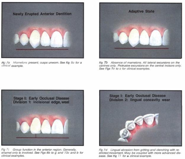 Int J Periodont Rest Dent 1990 Vol.10-3