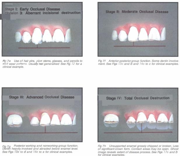 Int J Periodont Rest Dent 1990 Vol.10-4