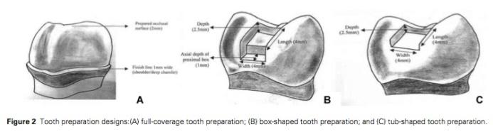 J Prosthodontics 2015 Vol.24-2