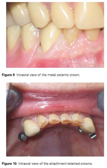 J Prosthodontics 2015 Vol.24-7