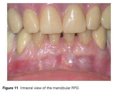 J Prosthodontics 2015 Vol.24-8
