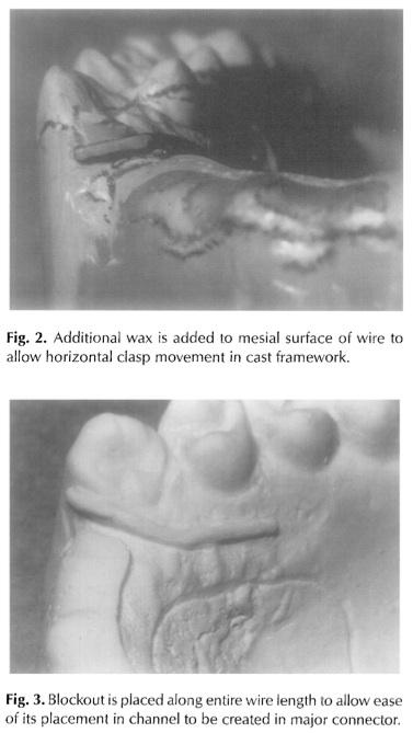 JPD 1997 Vol.77-3