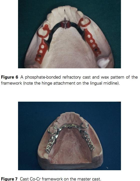 J prosthodontics 2015 Vol.24-5