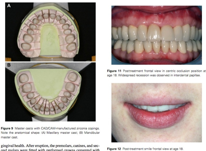 J Prosthodontics 2015 Vol.24-6