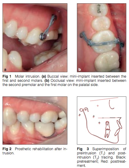 Int J Prosthodont 2015 Vol.28-2
