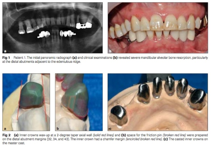 Int J Prosthodont 2016 Vol.29-2