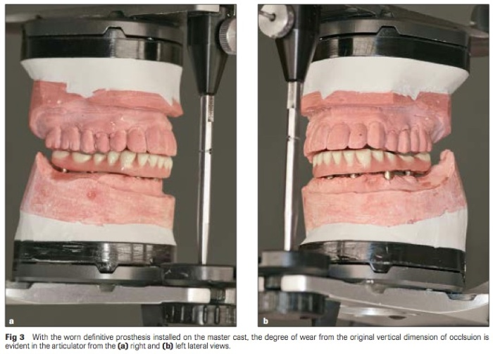 Int J Prosthodont 2016 Vol.29-3