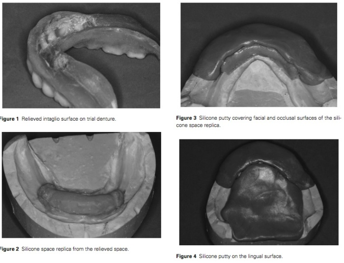 J Prosthodontics 2016 Vol.25-2