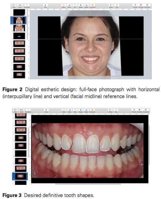 J Prosthodontics 2016 Vol.25-3
