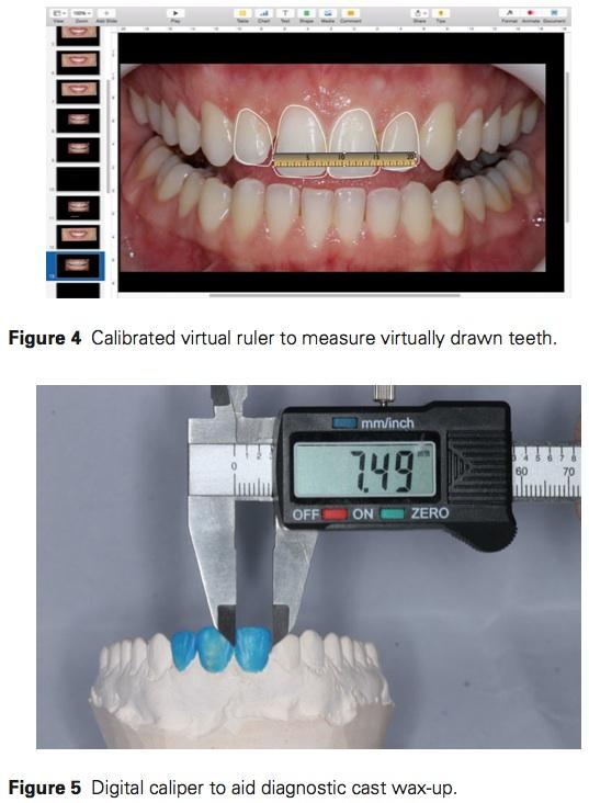 J Prosthodontics 2016 Vol.25-4