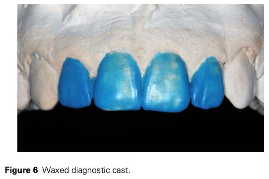J Prosthodontics 2016 Vol.25-5