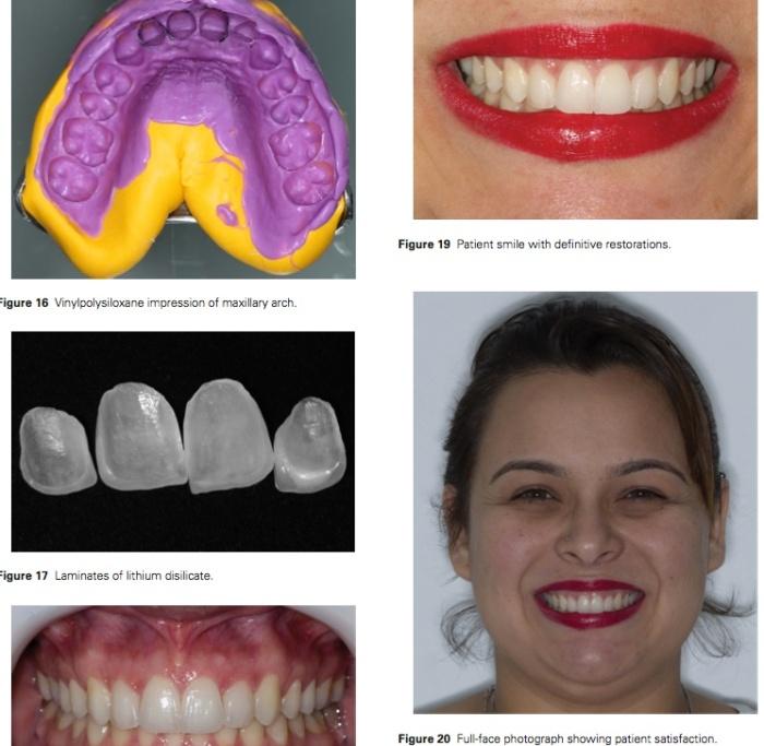 J Prosthodontics 2016 Vol.25-8