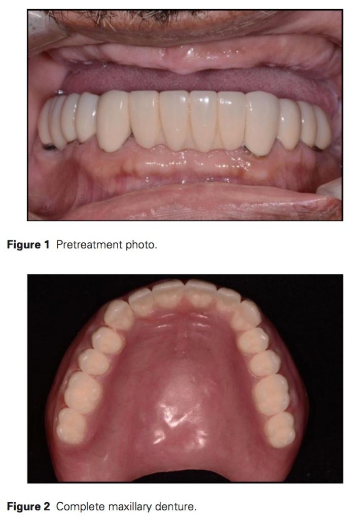 j-prosthodontics-2016-vol-25-2