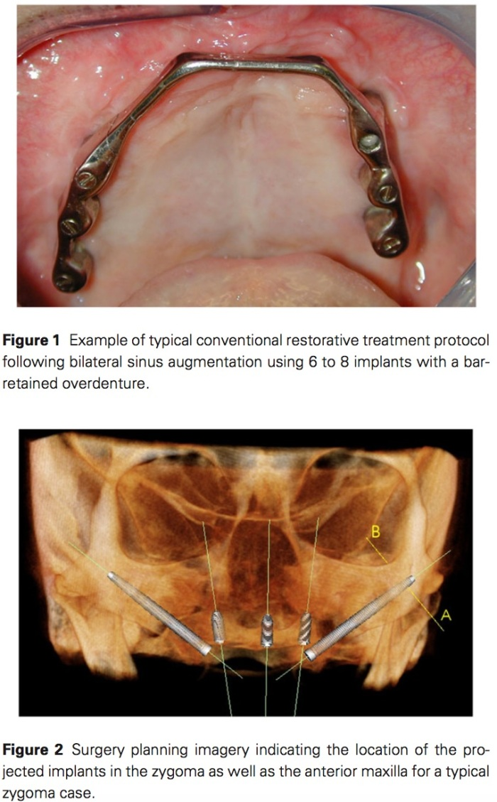 J Prosthodontics 2017 Vol.26-2