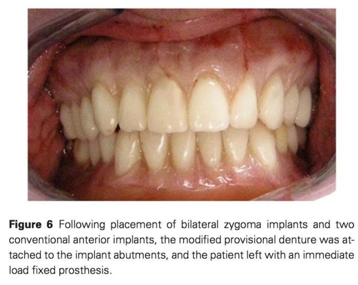 J Prosthodontics 2017 Vol.26-5
