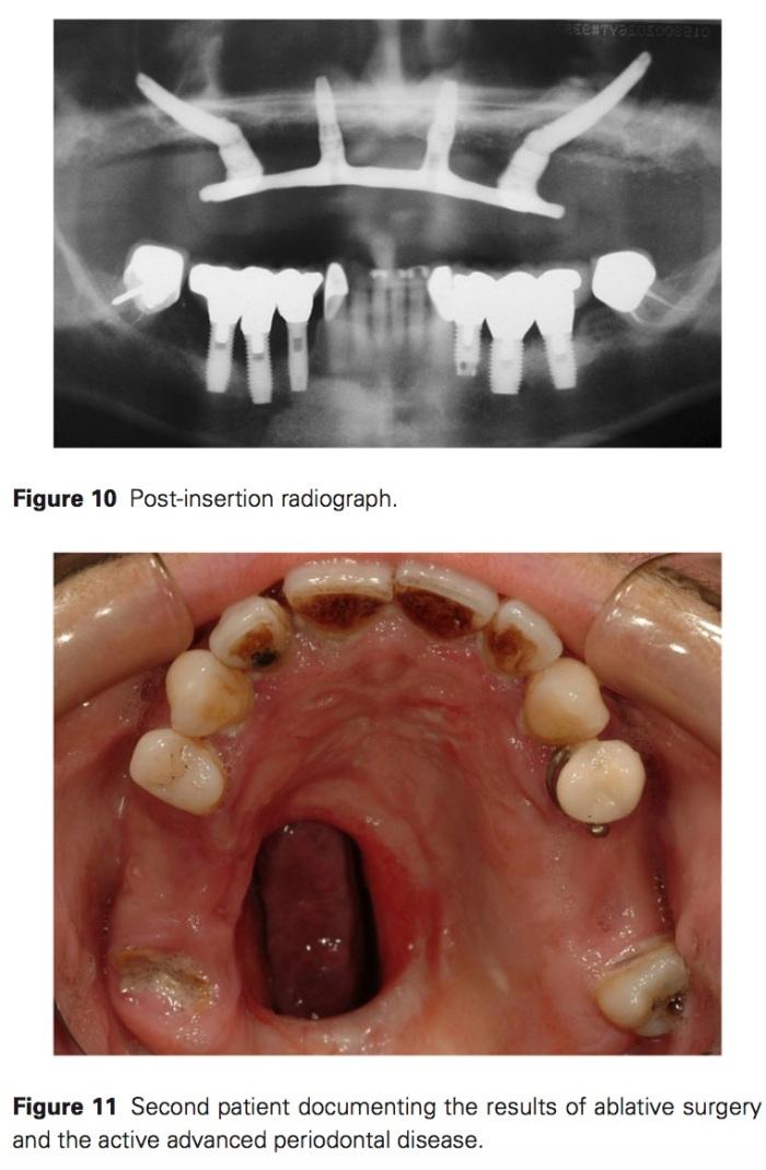 J prosthodontics 2017 Vol.26-8