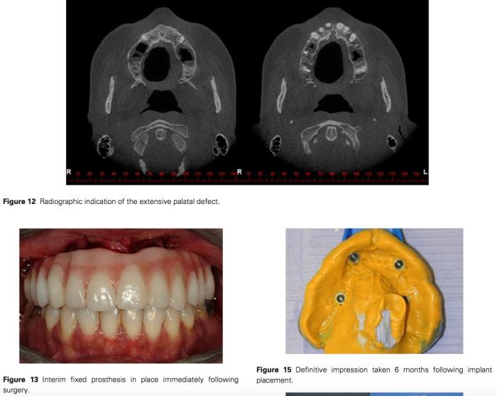 J Prosthodontics 2017 Vol.26-9
