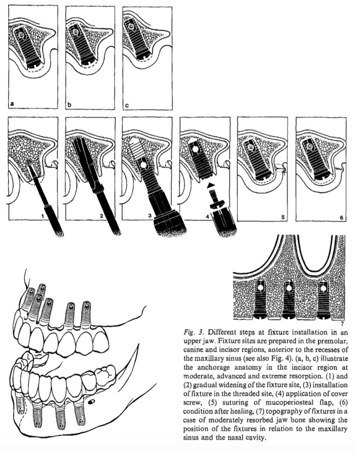Int J Oral Surg 1981 Vol.10-4